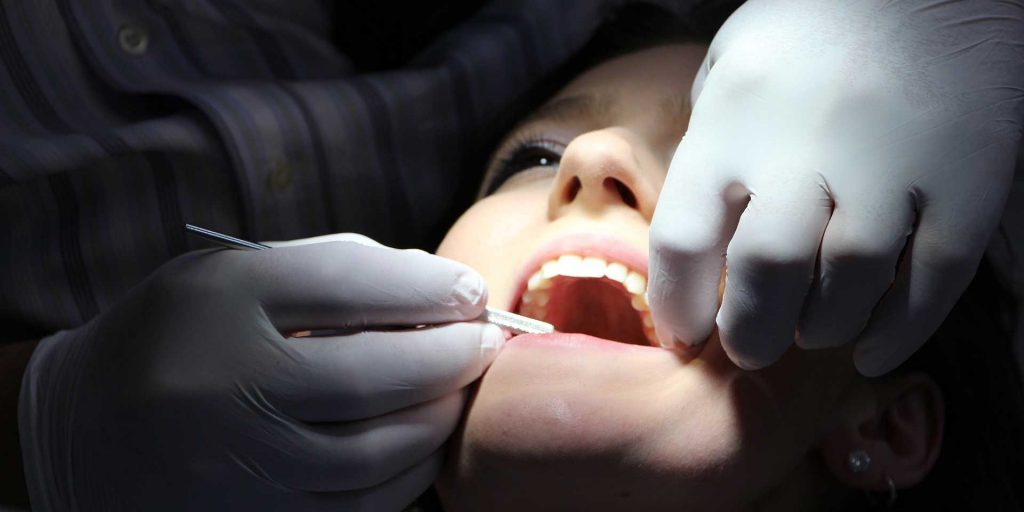 Custom Made Veeners Improve the Appearance of Your Smile